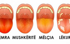 Nëse gjuha juaj ka këtë ngjyrë, keni këtë problem shëndetësor