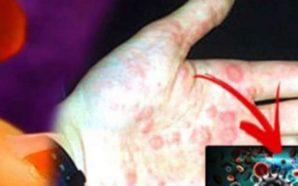 E tmerrshme! U infektua me HIV AIDS nga trajtimi që…