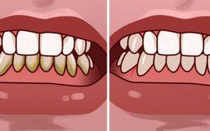 Si të hiqni gurëzat e dhëmbëve në më pak se…